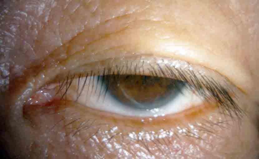 重度先天性眼瞼下垂症の写真